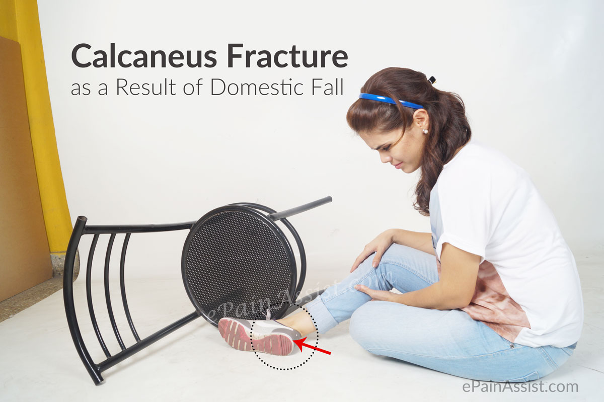 Calcaneus Fracture or Broken Heel as a Result of Domestic Fall