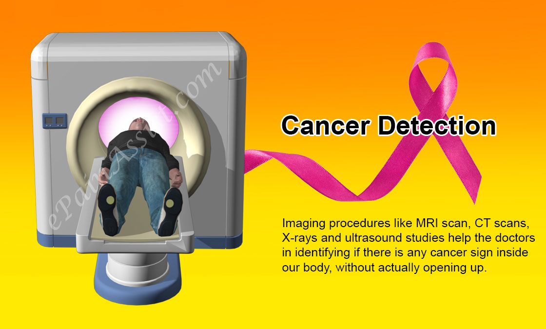 Cancer Detection