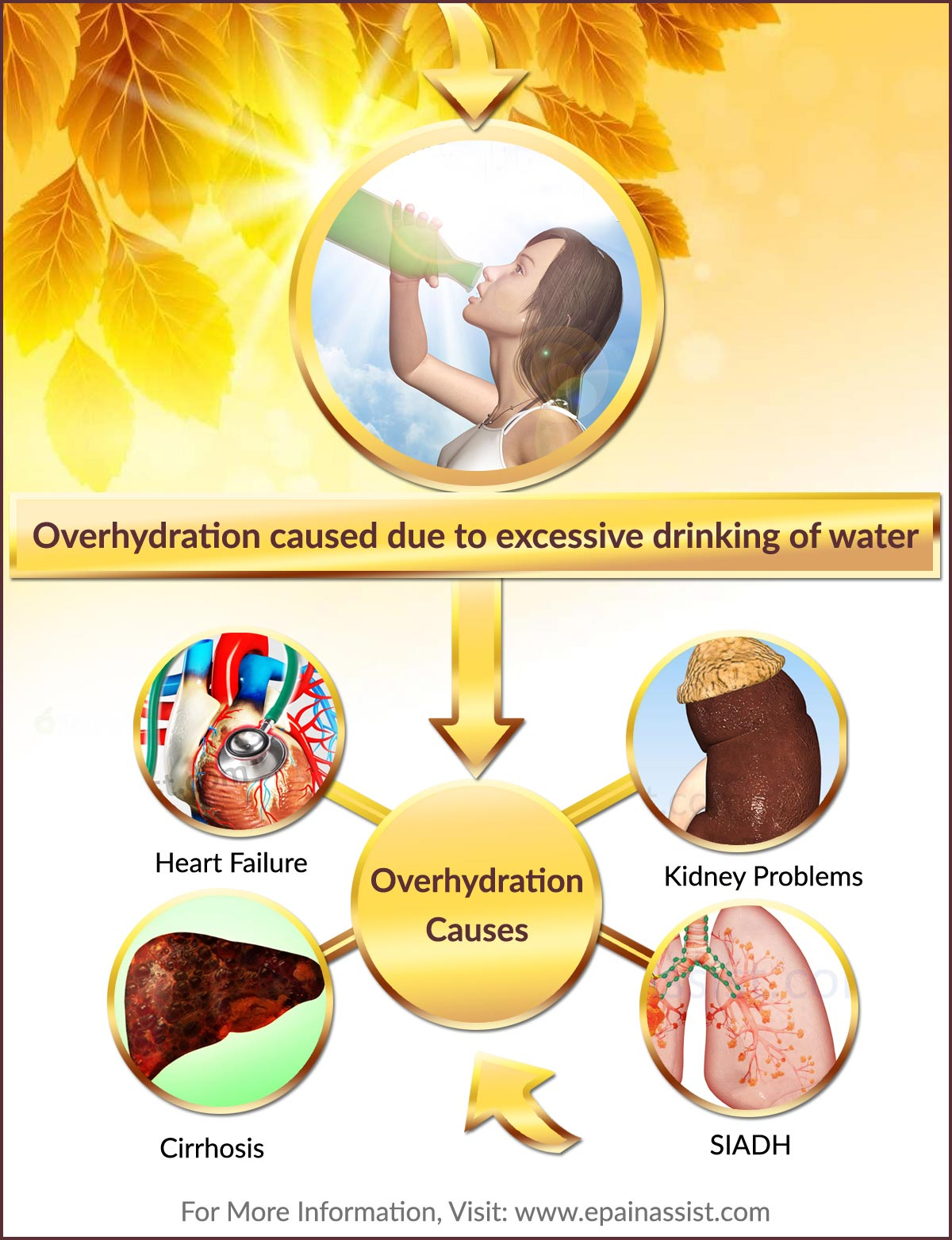 What Causes Overhydration?, Infographic