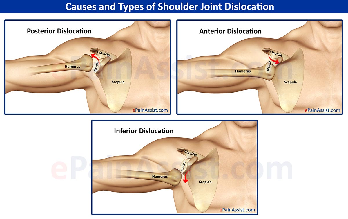 Causes and Types of Shoulder Joint Dislocation: Anterior, Posterior, Inferior