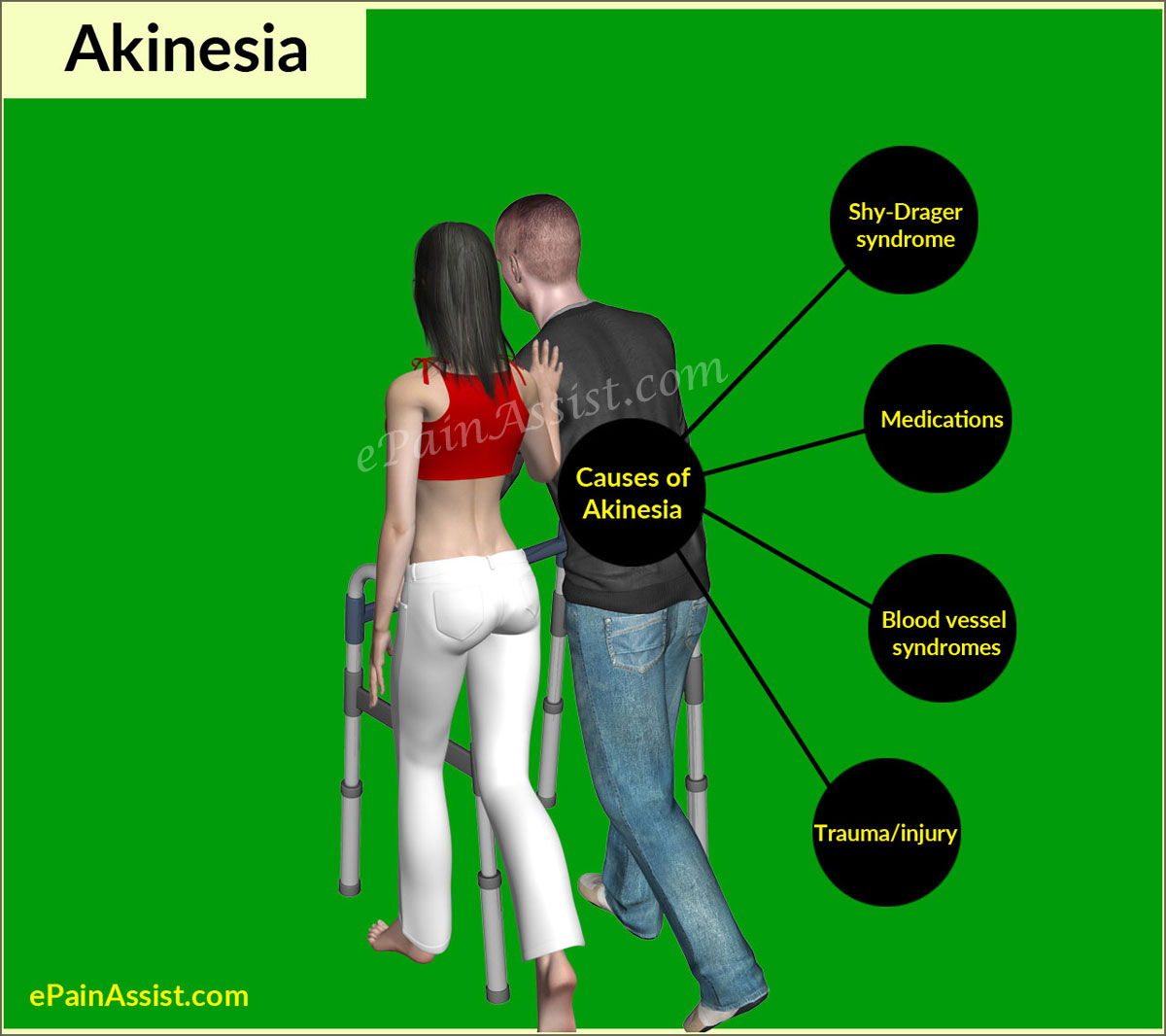 Causes of Akinesia