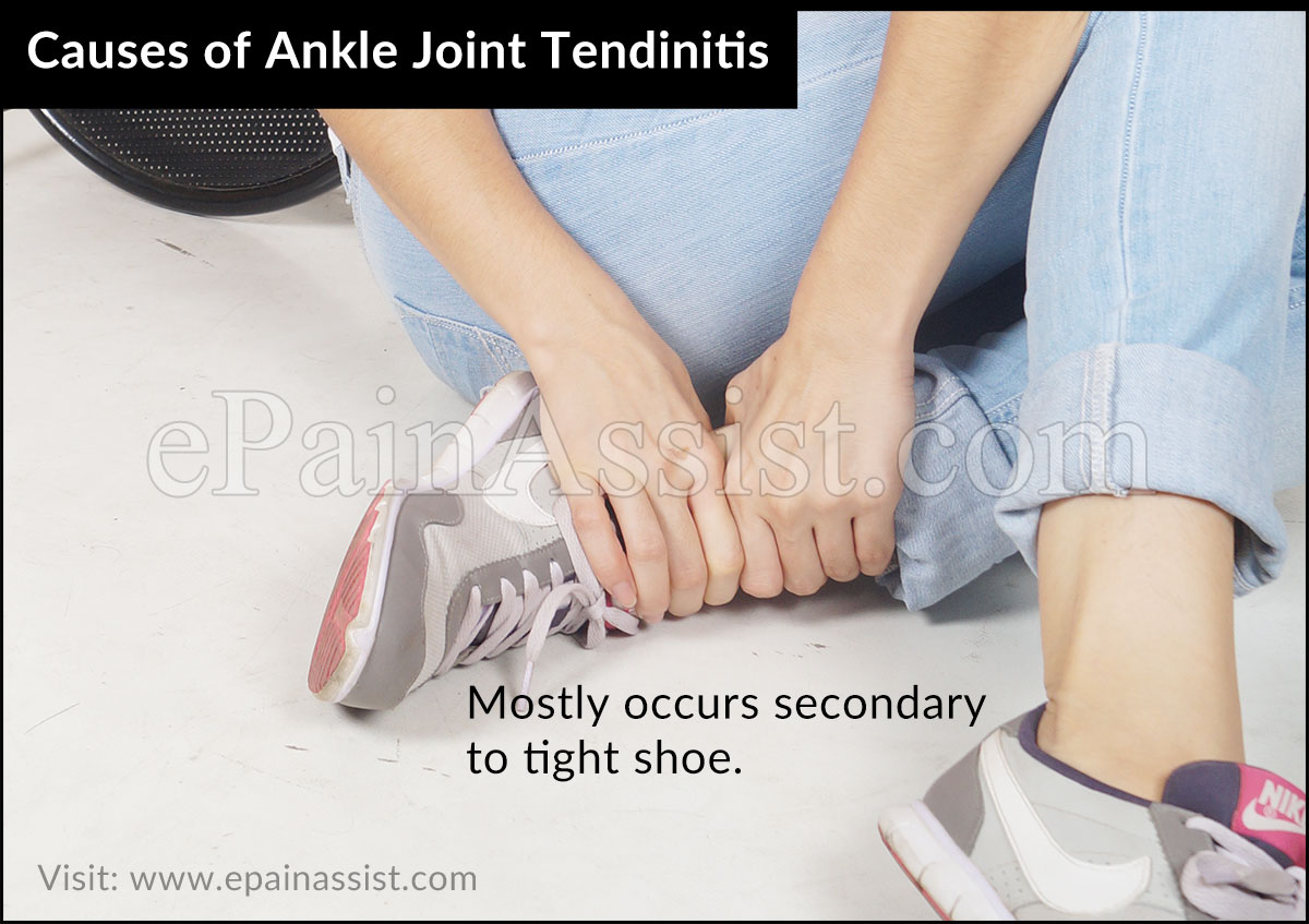causes of Ankle Joint Tendinitis