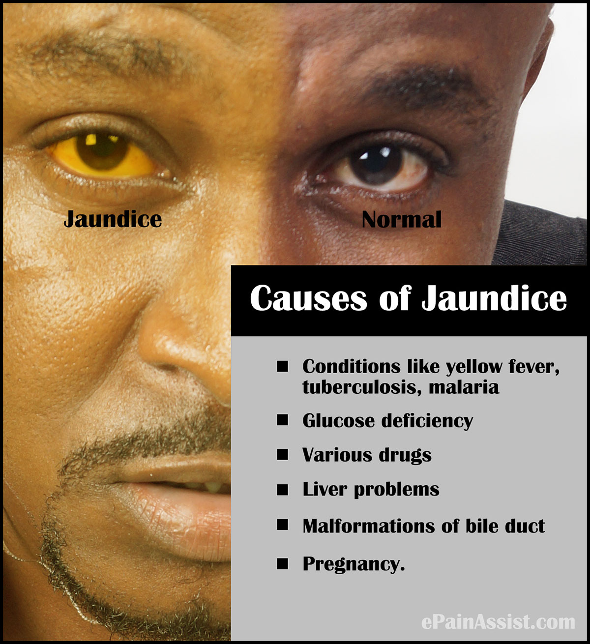How to treat jaundice in adults