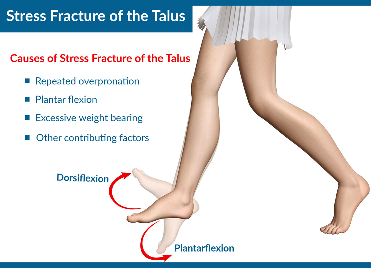 Causes of Stress Fracture of the Talus