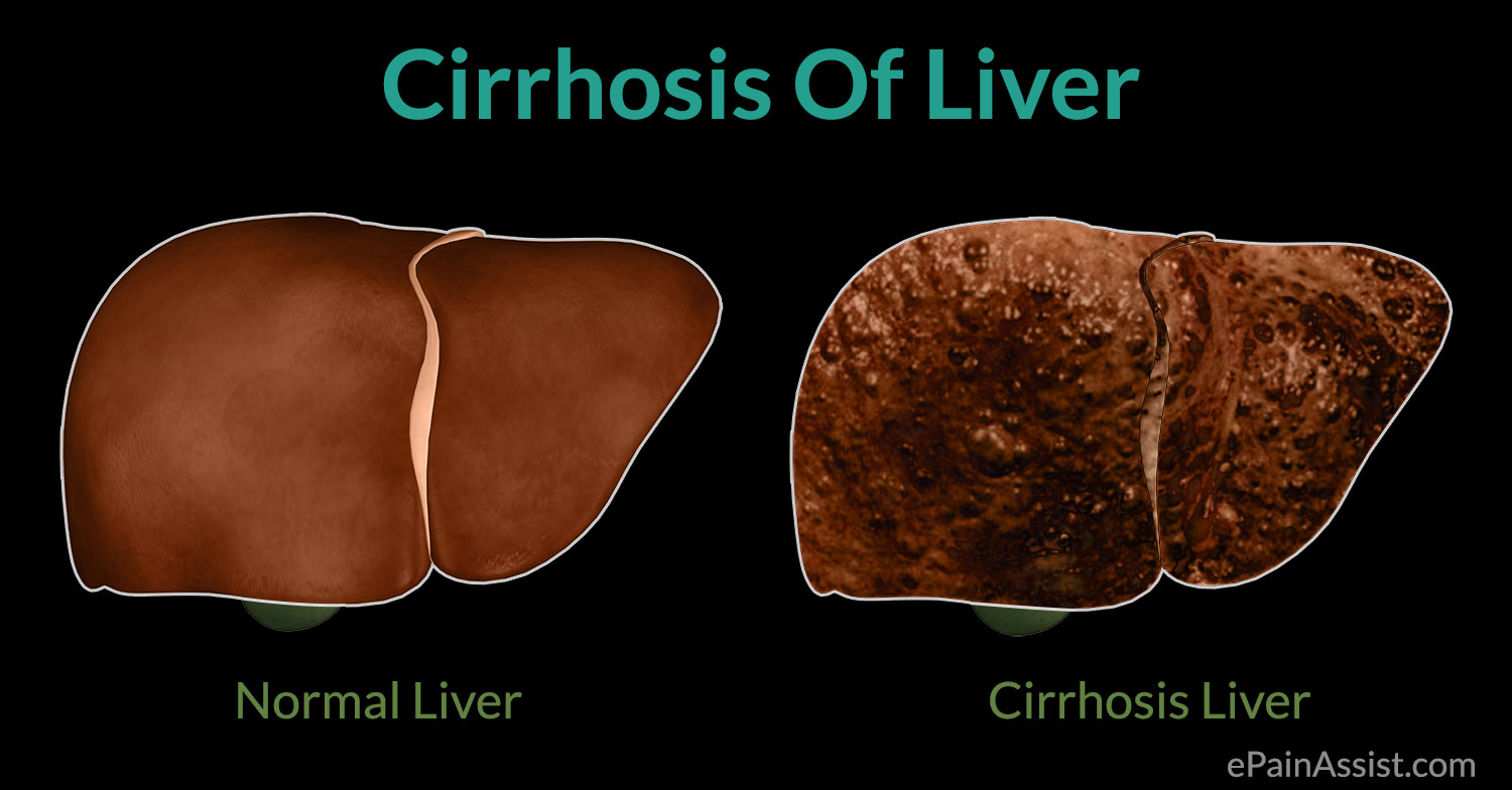 cirrhosis of liver causes symptoms treatment complications