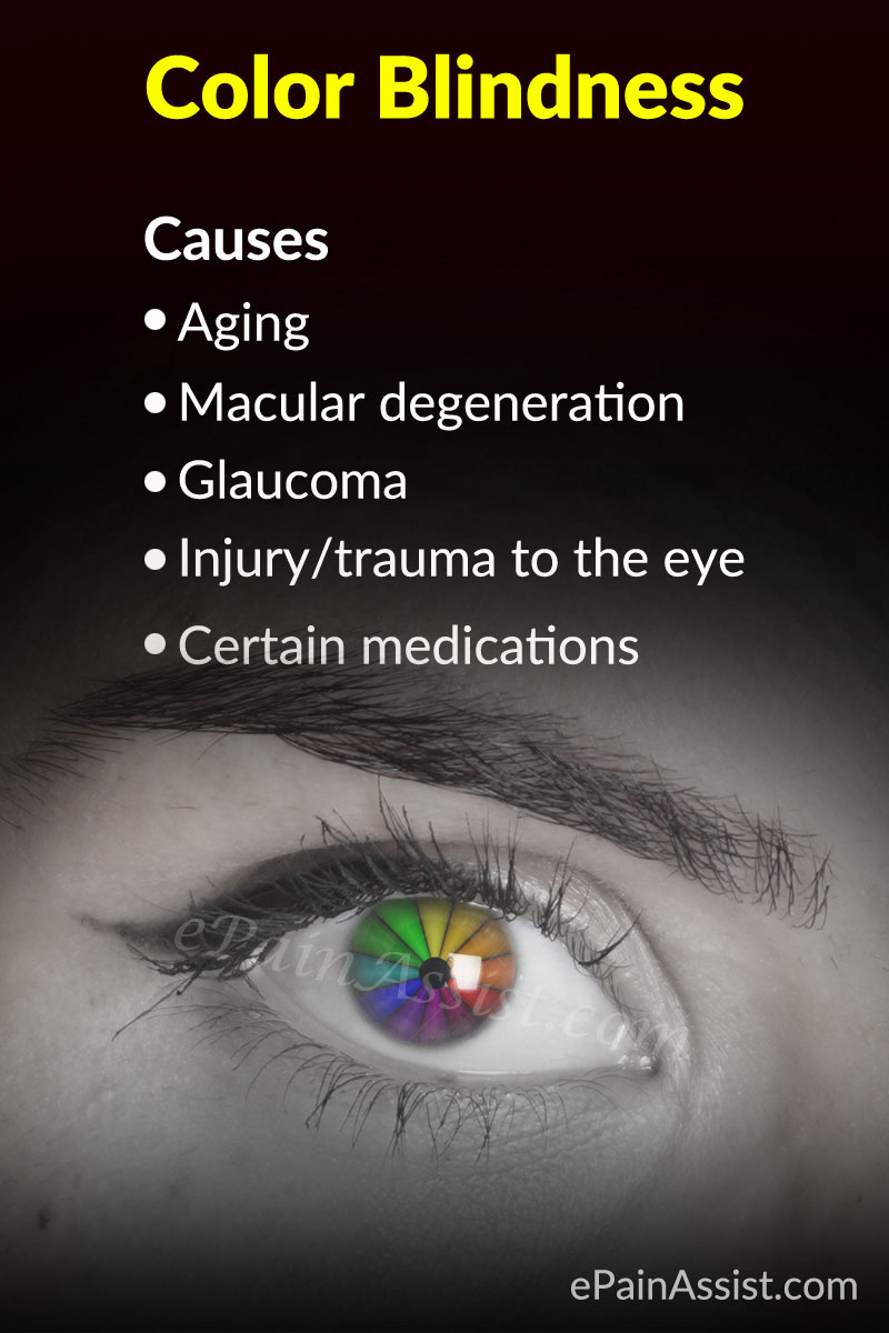 Causes of Color Blindness or Color Vision Deficiency
