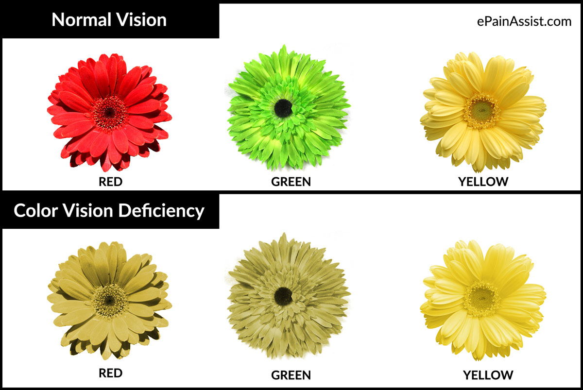 Color Blindness Or Color Vision Deficiency Causes Symptoms