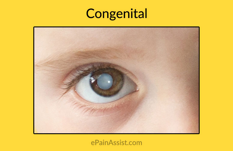 Congenital Or Acquired Cataracts In Childrensymptomscauses