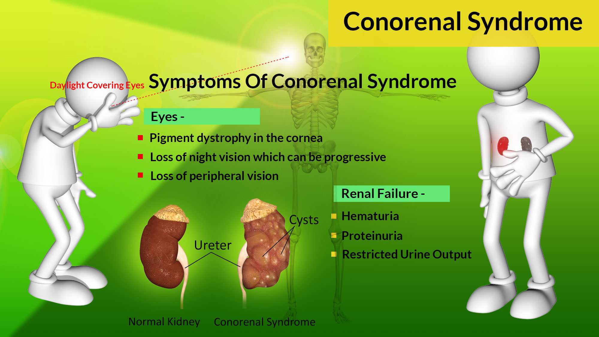 Conorenal Syndrome or Mainzer-Saldino Syndrome
