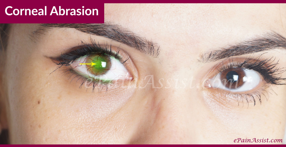 What is Corneal Abrasion?