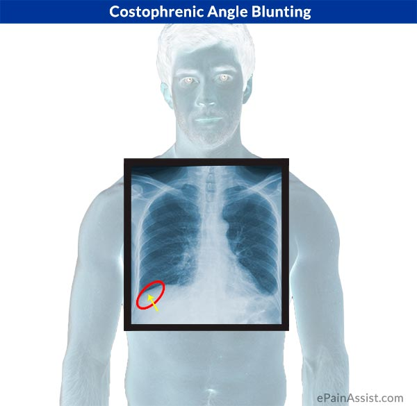 Costophrenic Angle Blunting
