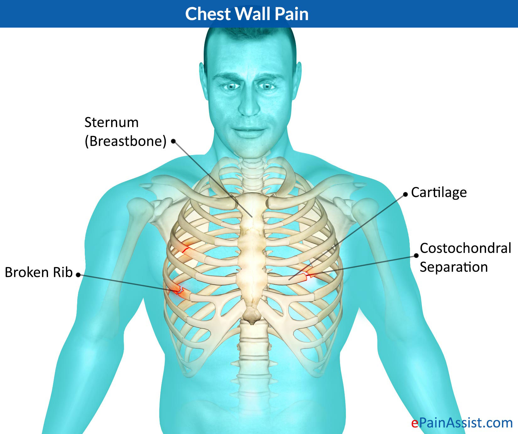 know what can cause chest wall pain and its treatment, Skeleton