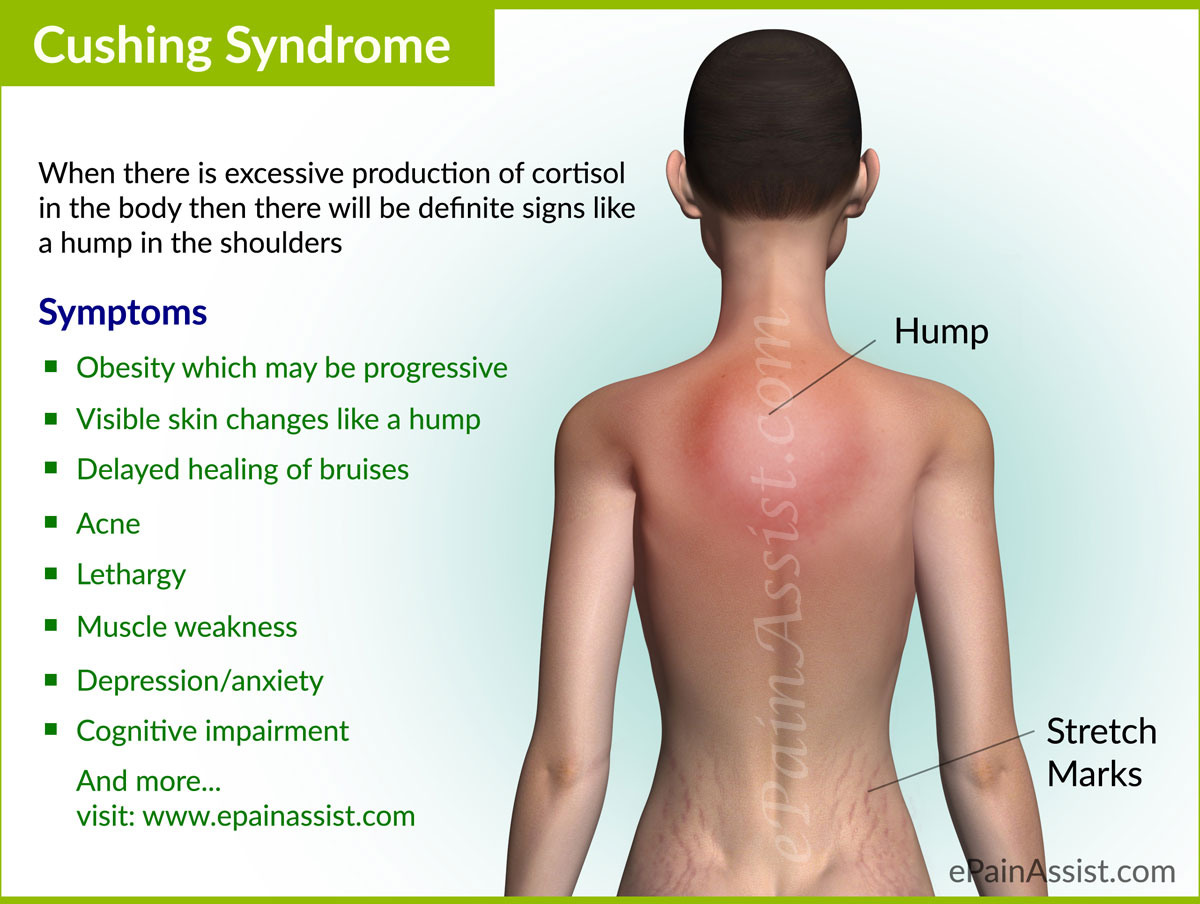 The symptoms of Cushing Syndrome may be variable  Some of the common