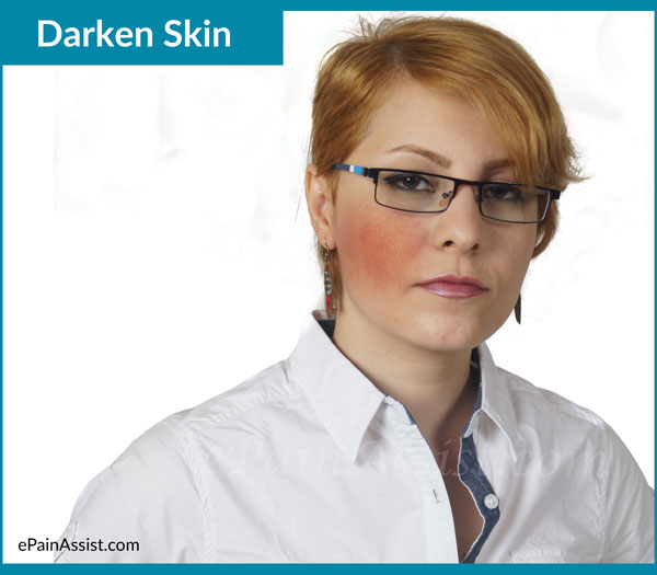 Darken Skin or Hyperpigmentation
