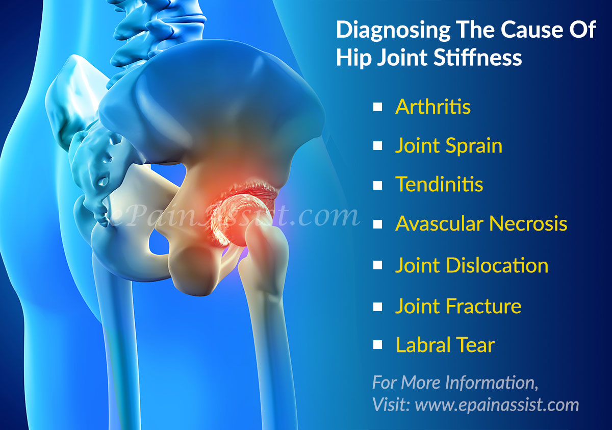 What is a Joint Joint Disease, Diagnosis and Treatment 9