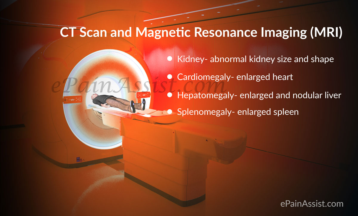 CT Scan and/or Magnetic Resonance Imaging (MRI)
