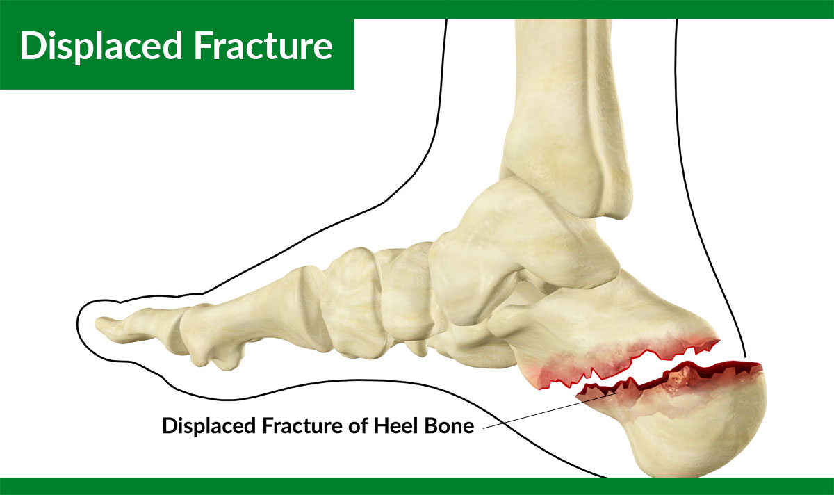 Displaced Fracture of the Calcaneus or Heel Bone