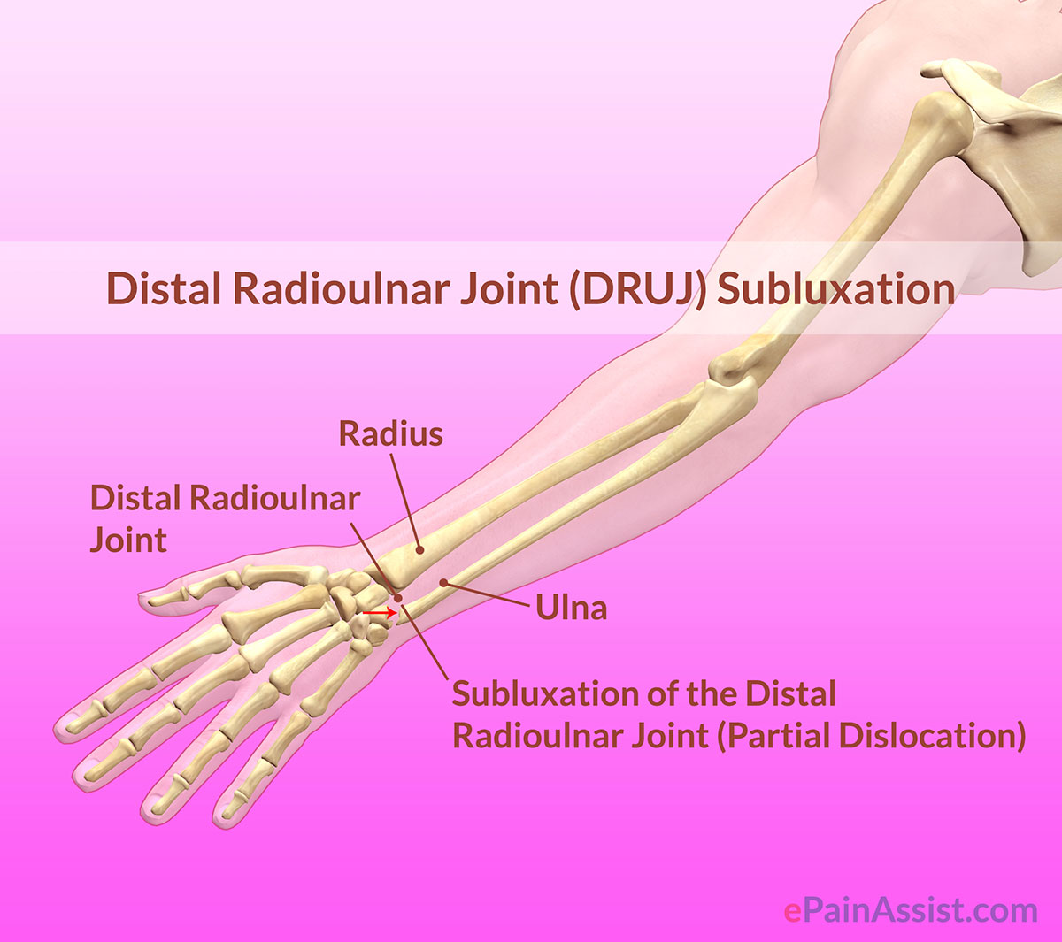 Distal Radioulnar Joint (DRUJ) Subluxation