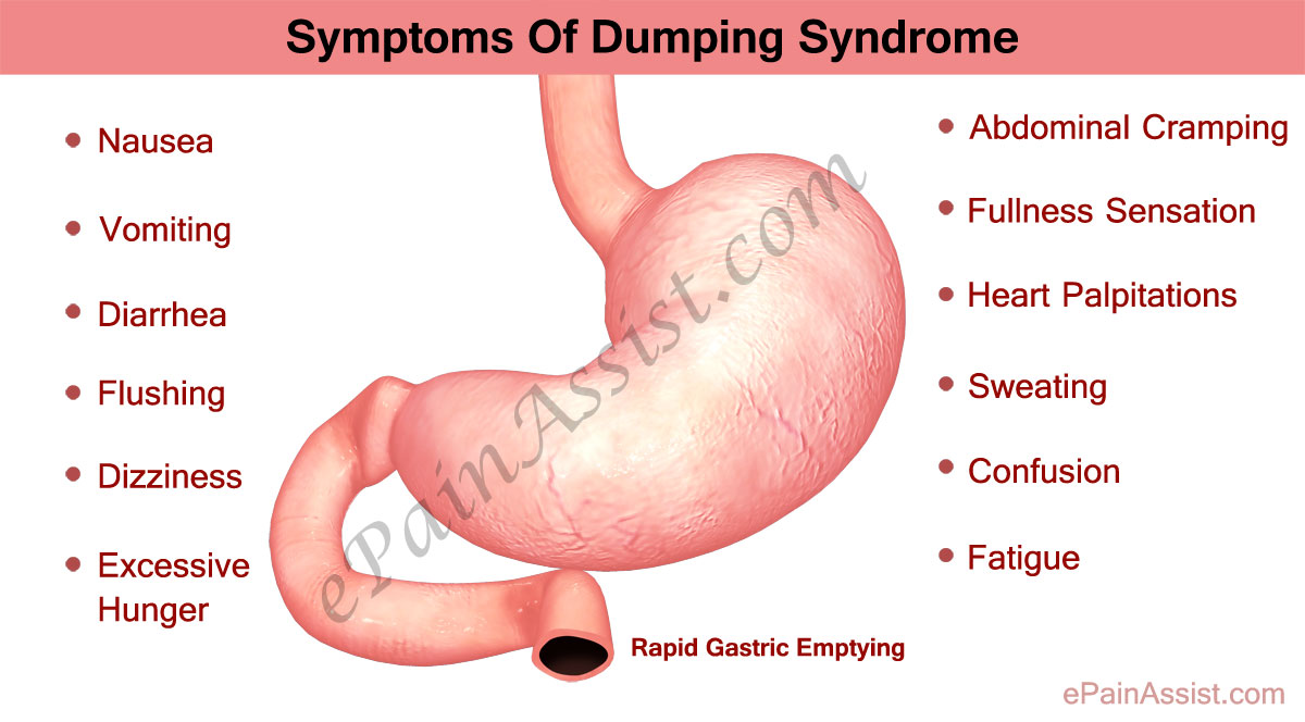 Dumping Syndrome: Treatment, Symptoms, Causes, Facts, Diet ...