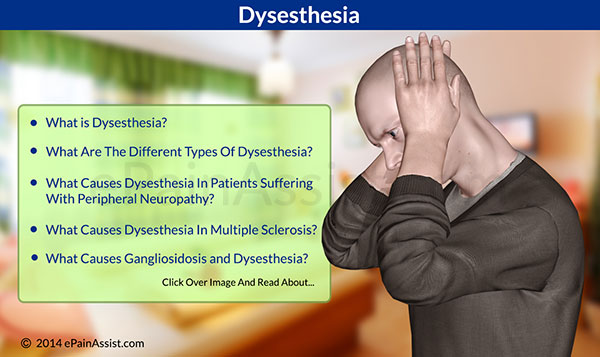 q and a on dysesthesia|types-somatic, visceral, cutaneous, Skeleton