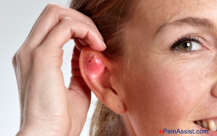 Ear Piercing Infection Causes Treatment Home Remes