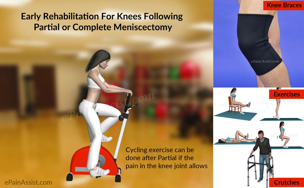 Early Rehabilitation For Knees Following Partial or Complete Meniscectomy