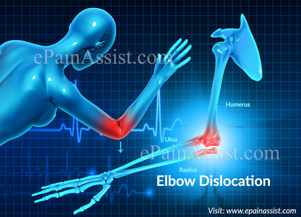 Elbow Dislocation or Dislocated Elbow