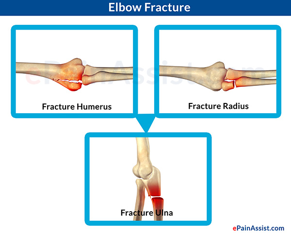 Causes & Symptoms of Elbow Joint Pain