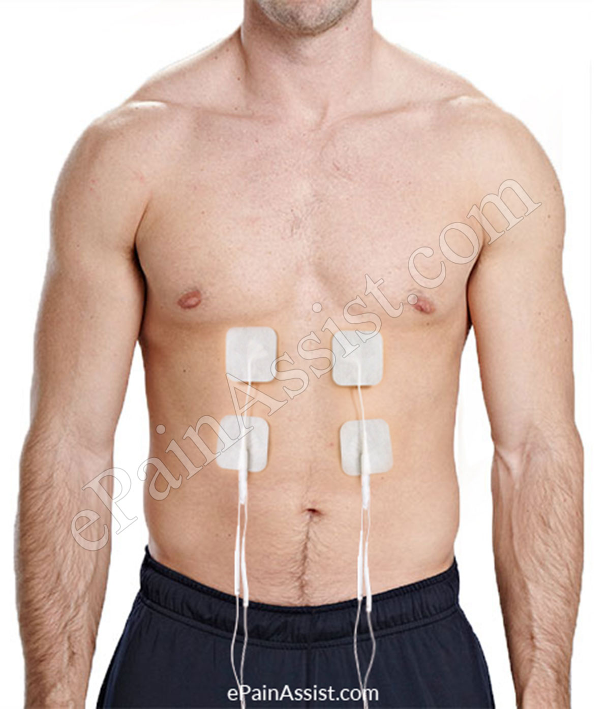 Electrical Muscle Stimulation (EMS)