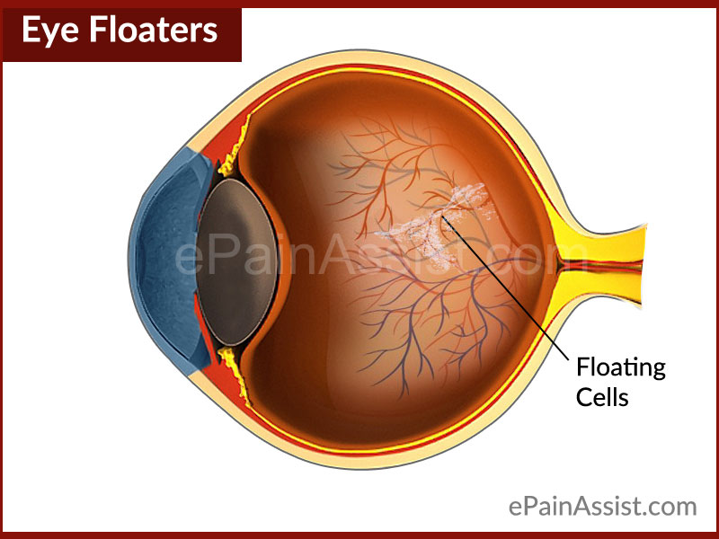 Eye Floaters|What Causes Floaters in Eye and How to Get Rid of it?