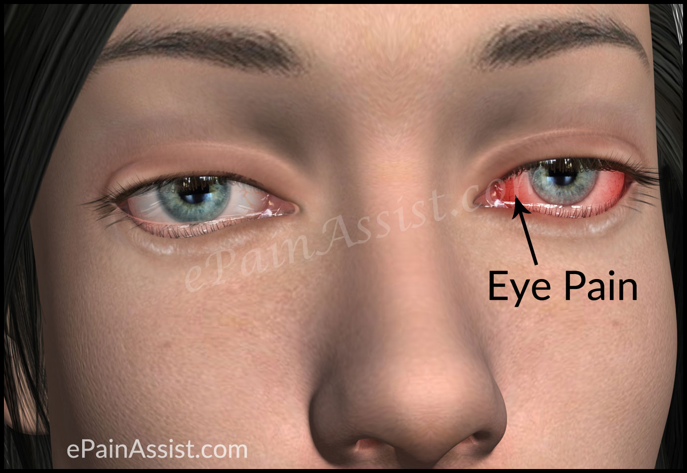 What is Eye Pain?