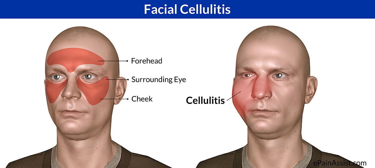 Facial Cellulitis|Causes|Risk Factors|Signs|Symptoms ...