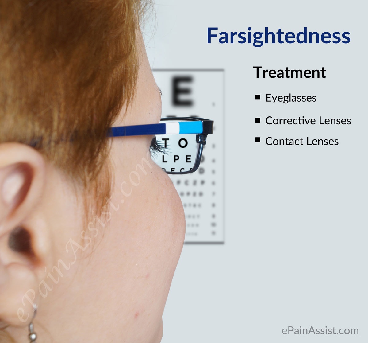 Treatment for Hyperopia or Farsightedness
