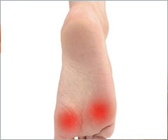 Heel Pain Due To Fat Pad Atrophy