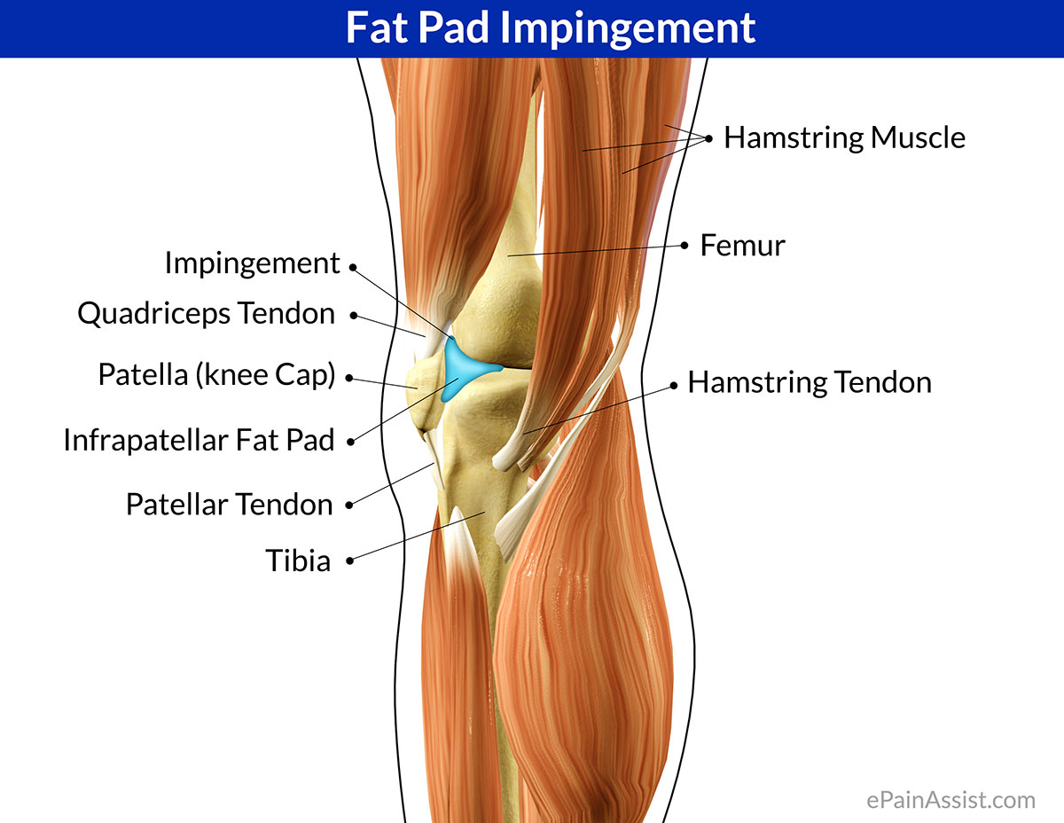 Fat Pad Impingement or Hoffa\'s Pad Impingement|Symptoms|Treatment ...