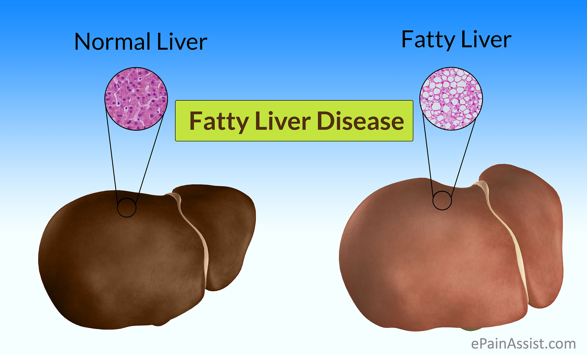 Fatty Liver Disease Fld on eating liver and cholesterol