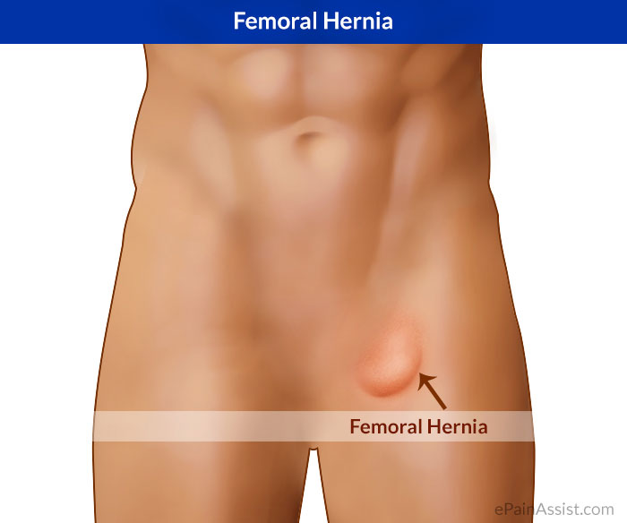 Femoral Hernia|Treatment|Causes|Symptoms|Signs|Exercise