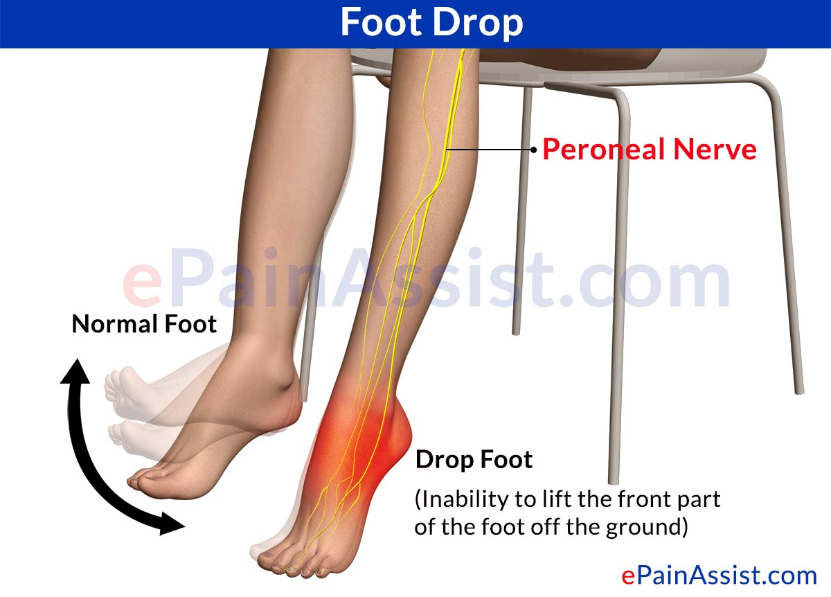 Foot Dropsymptomstreatmentexercisesrecovery