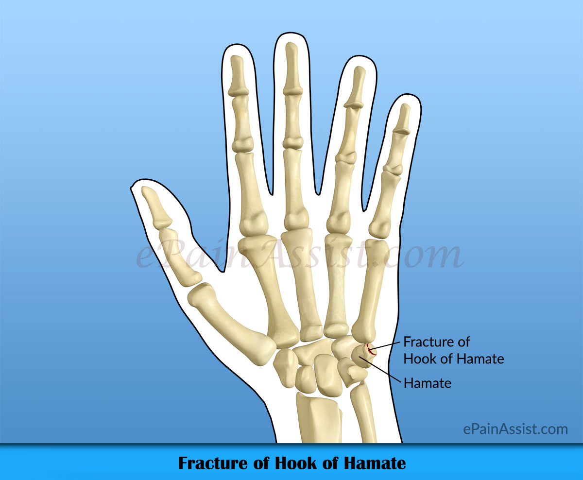 Fracture of Hook of Hamate