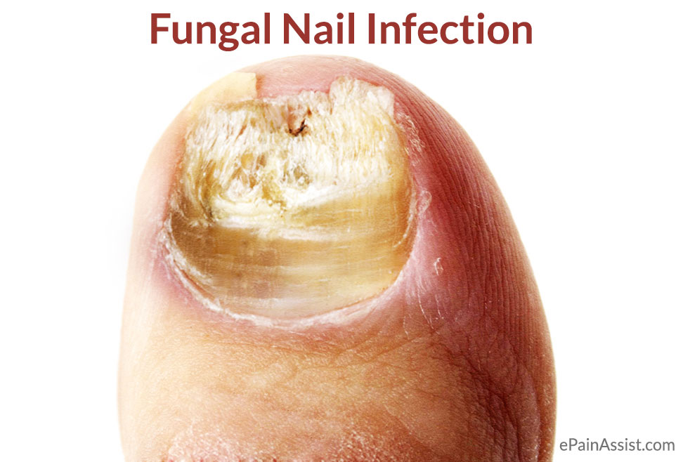 Fungal Nail Infection|Causes|Treatment|Home Remedies|Symptoms|Prevention