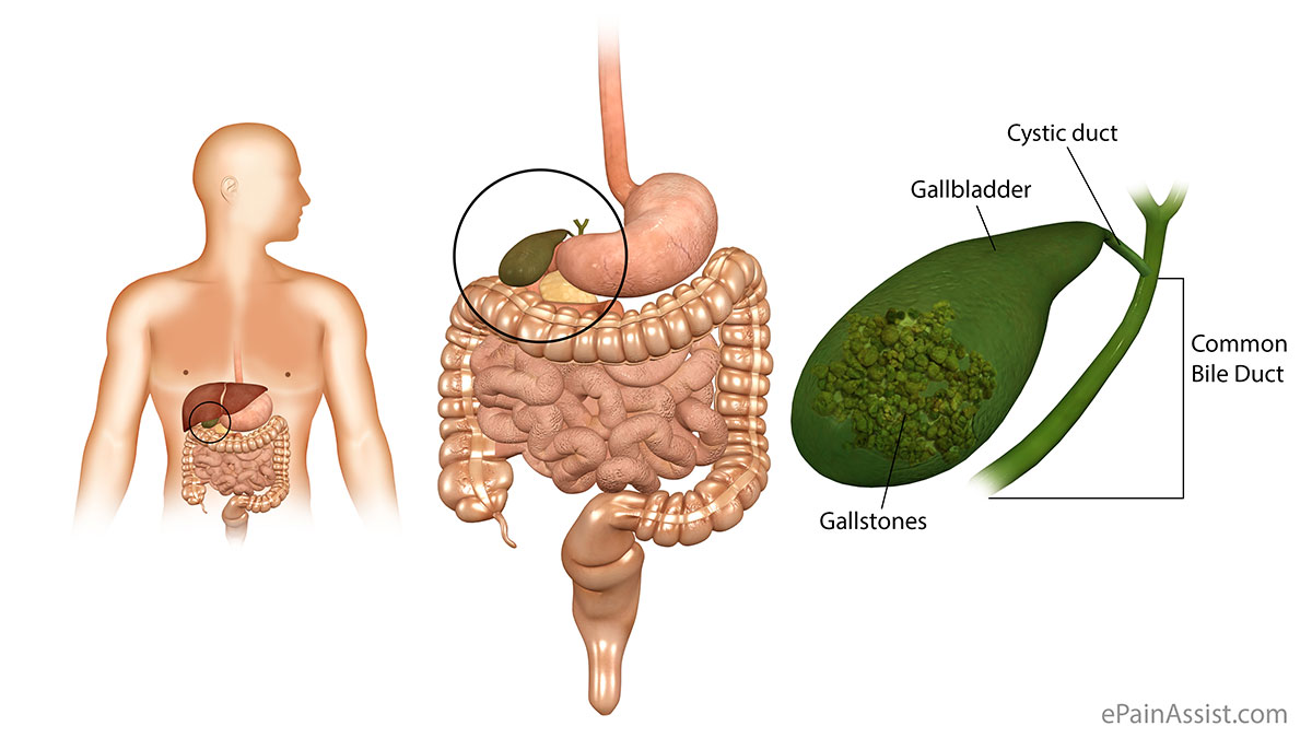 Gallbladder Pain|Classification|Types|Pathophysiology ...