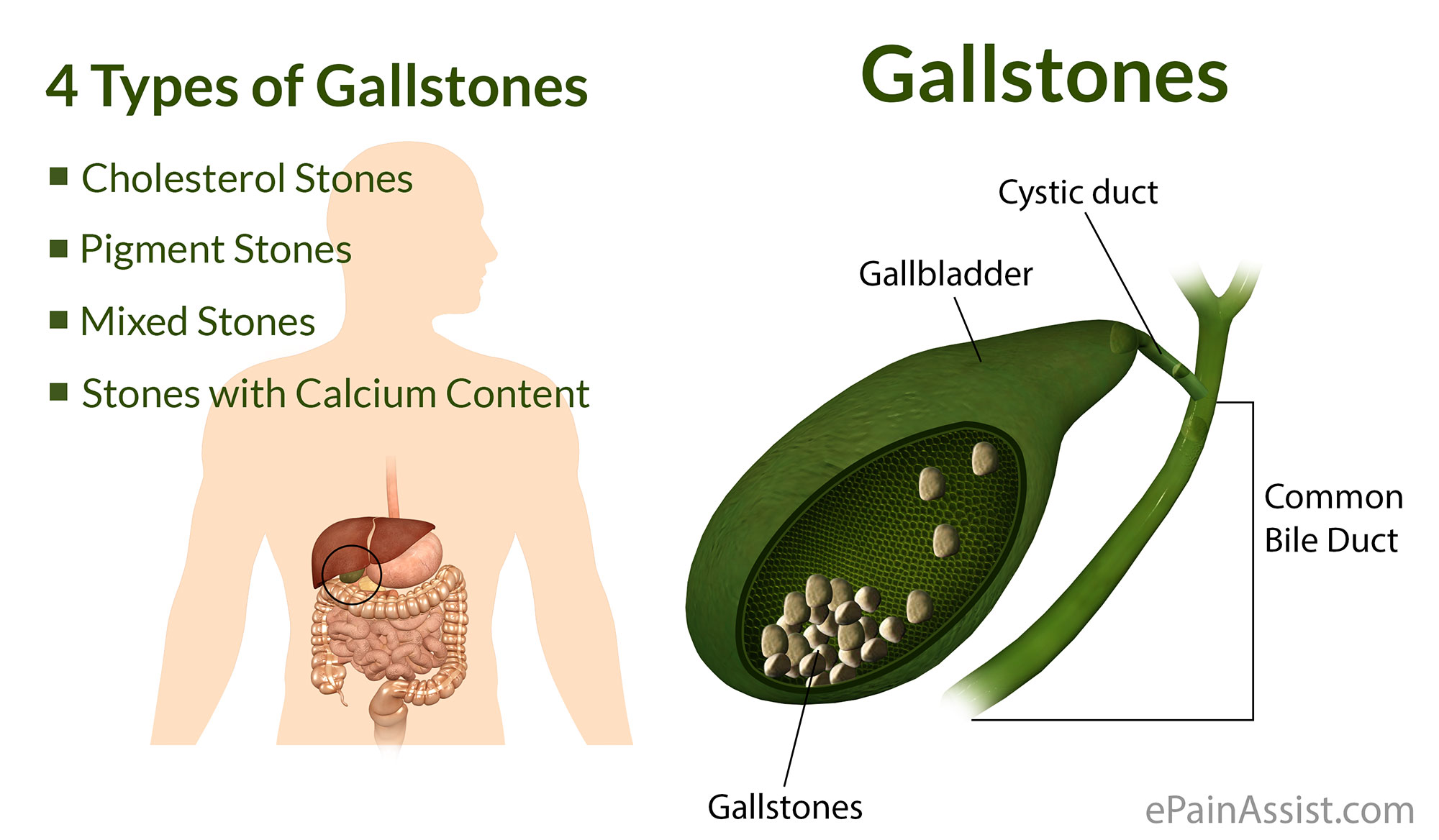what are gallstones|types|causes|symptoms|treatment|risk factors, Human Body