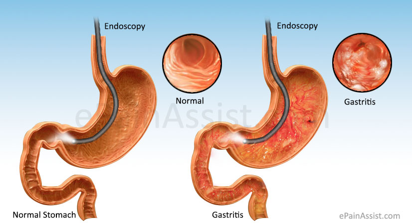gastritis: treatment, symptoms, causes, risk factors, Skeleton