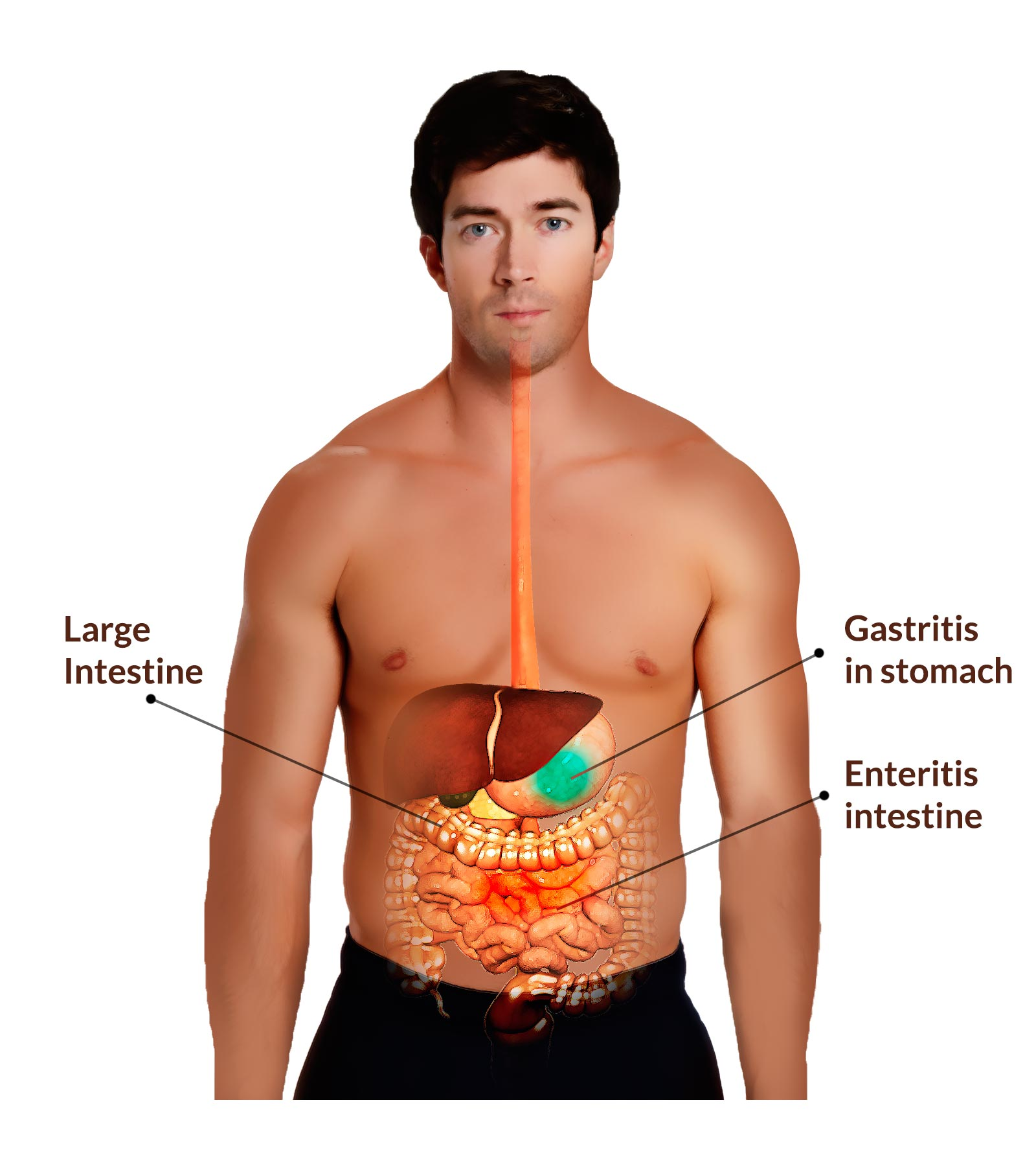 gastroenteritis: treatment, causes, symptoms, signs, risk factors, Human Body