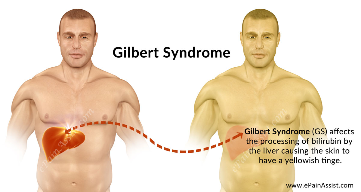 Gilbert Syndrome (GS)