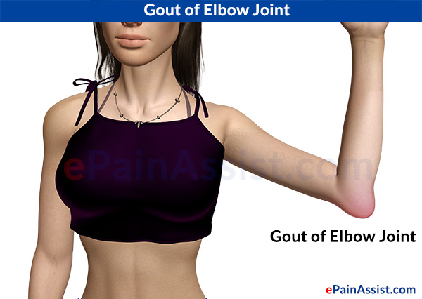 Gout of Elbow Joint