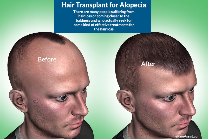 Hair Transplant for Alopecia