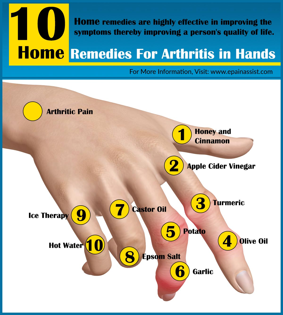 Natural Remedies Arthritis Finger Joints