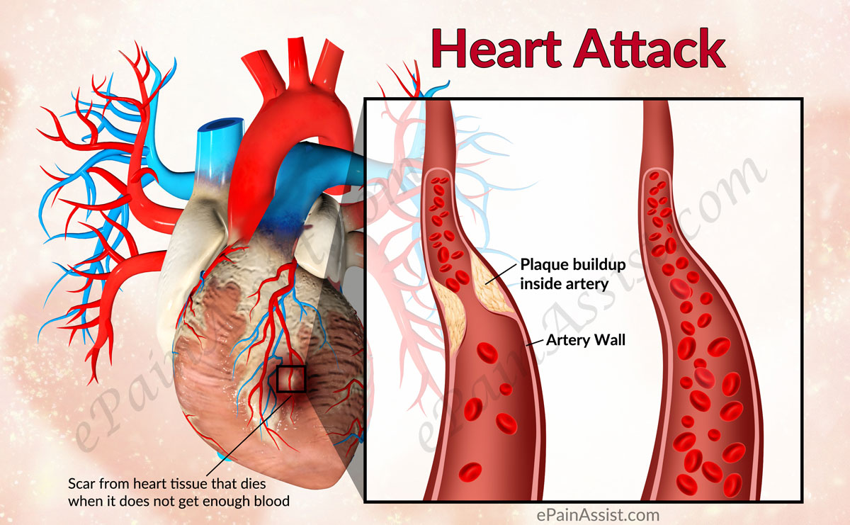 heart attcks Learn how to tell the difference between anxiety symptoms and signs of a heart  attack.