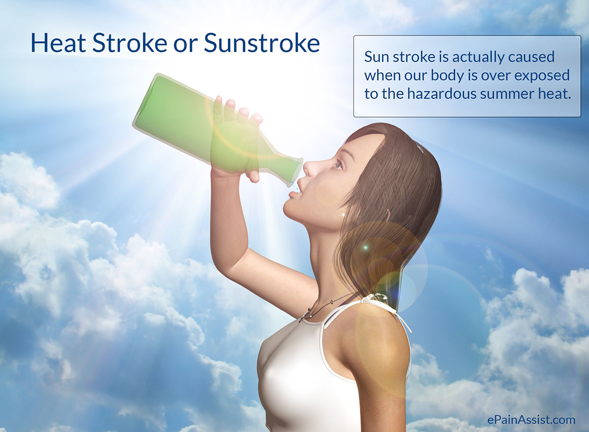 related keywords suggestions for heat stroke